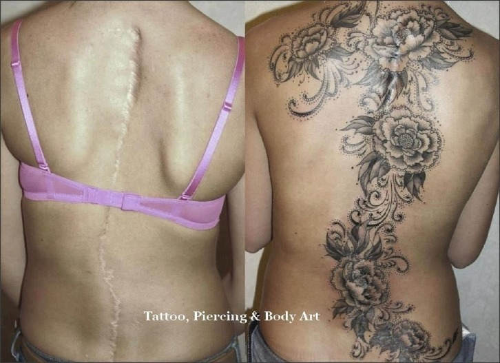 Creative tattoos covering scars shoulder scar guff for Tattoos to cover surgery scars
